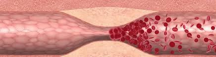 Изменения в системе кровоснабжения